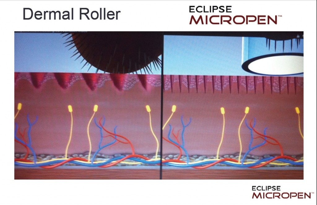 Dermal roller vs Eclipse Micropen diagram