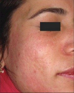 after Micropen treatment on female patient