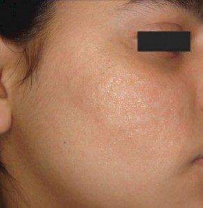 after Micropen treatment