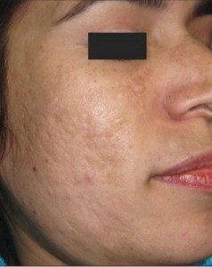before Micropen treatment on female patient