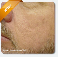 acne scars removed after treatment