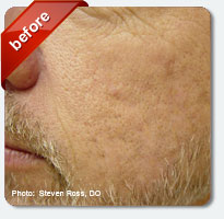 visible acne scars before treatment