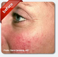 redness and age spots on face