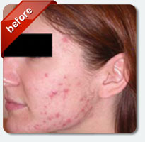female patient with acne-ridden face