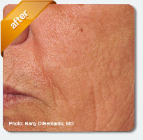 improved wrinkles and deep lines