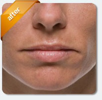 fine lines removed after treatment