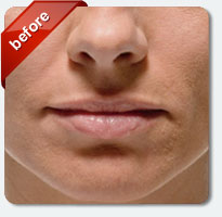 fine lines around mouth and nasolabial area