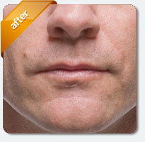 after cosmetic lip fillers male patient