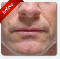 before cosmetic lip fillers male patient