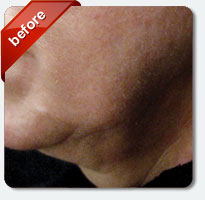 sagging neck skin before laser treatment