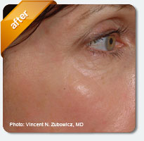 smoother cheeks and under eyes after treatment