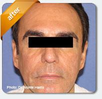 sun damage on male patient's facial skin