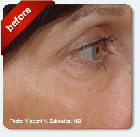 wrinkles around eyes and cheek