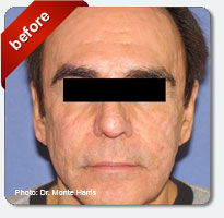 male patient treated for sun damage and wrinkles