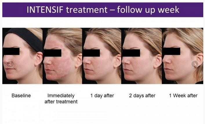 Intensif treatment progession from baseline to 1 week after