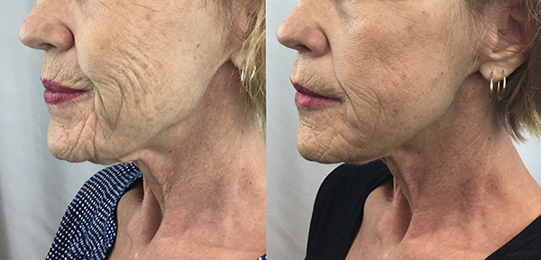 before and after NovaThreads on a mature female patient