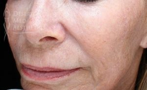 Patient results from Pearl Fusion fractional laser treatment at Desert Med Aesthetics