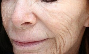 Patient before fractional laser treatment in Palm Desert
